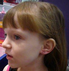 Sydney's Pierced Ear