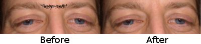 Eyebrows Waxed - Before and After