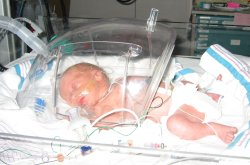 Adelaide in NICU